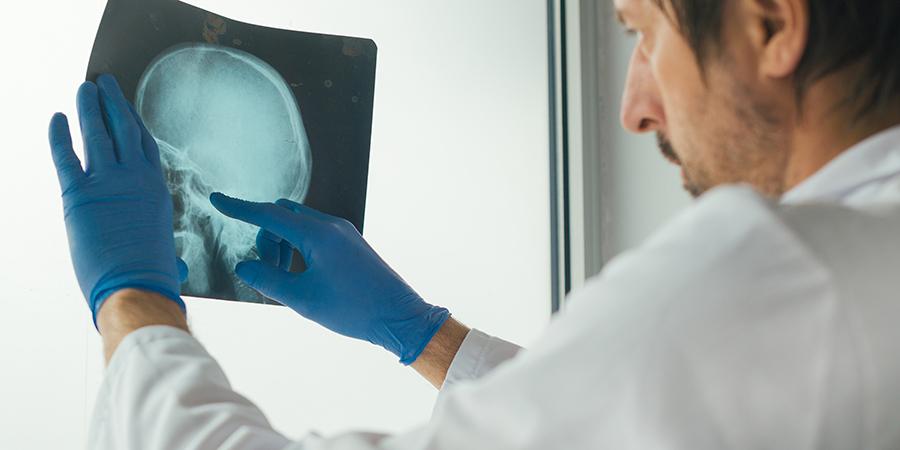 doctor examining x-ray of the skull.